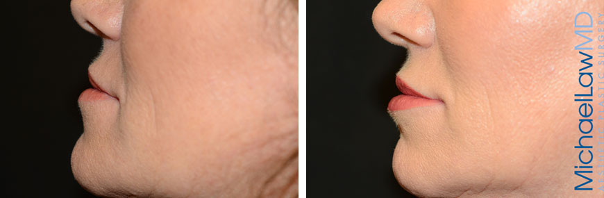 injectables-11a-lips