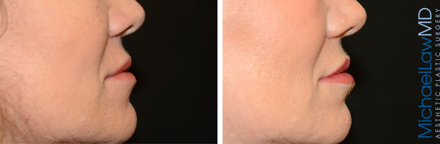 injectables-11b-lips