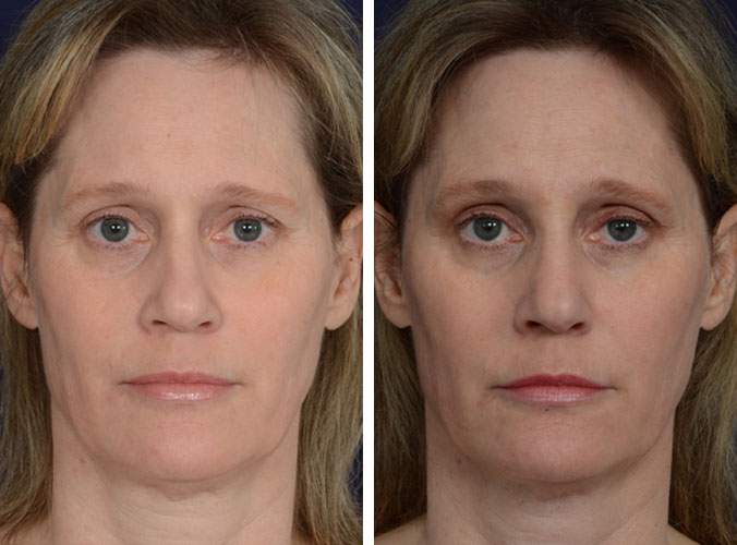injectables-3a-nose-filler