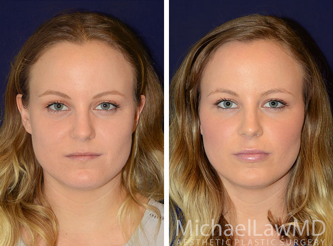 injectables-4a-lips-cheeks