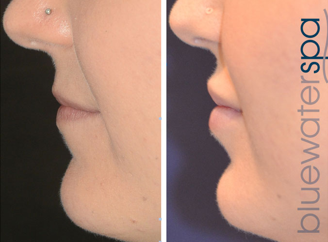 injectables-4c-lips-cheeks