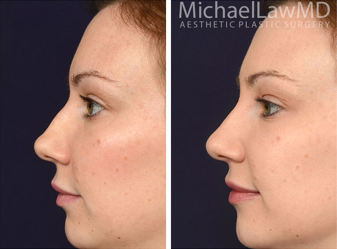 injectables-5c-nose