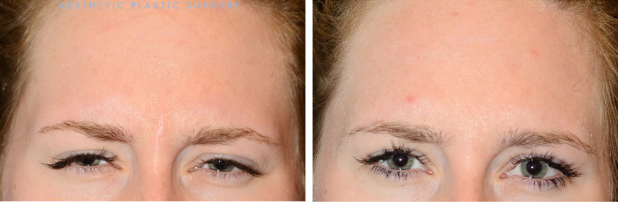 injectables-8a-botox