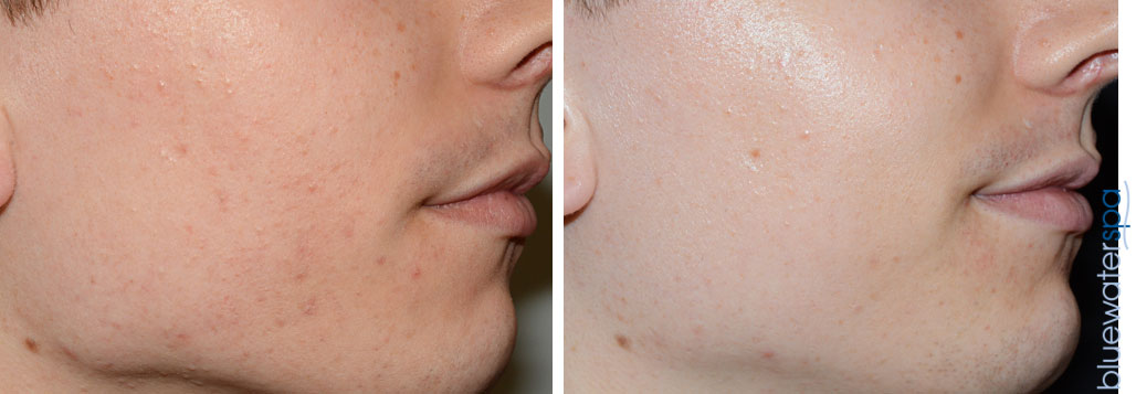 acne-scarring-1