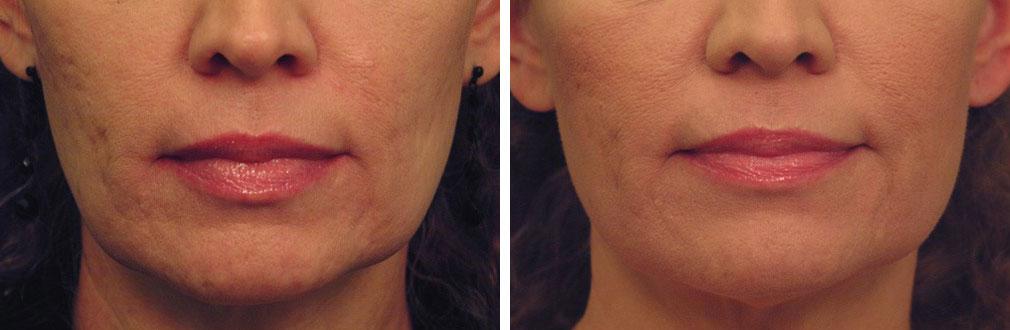 laser-skin-tightening2