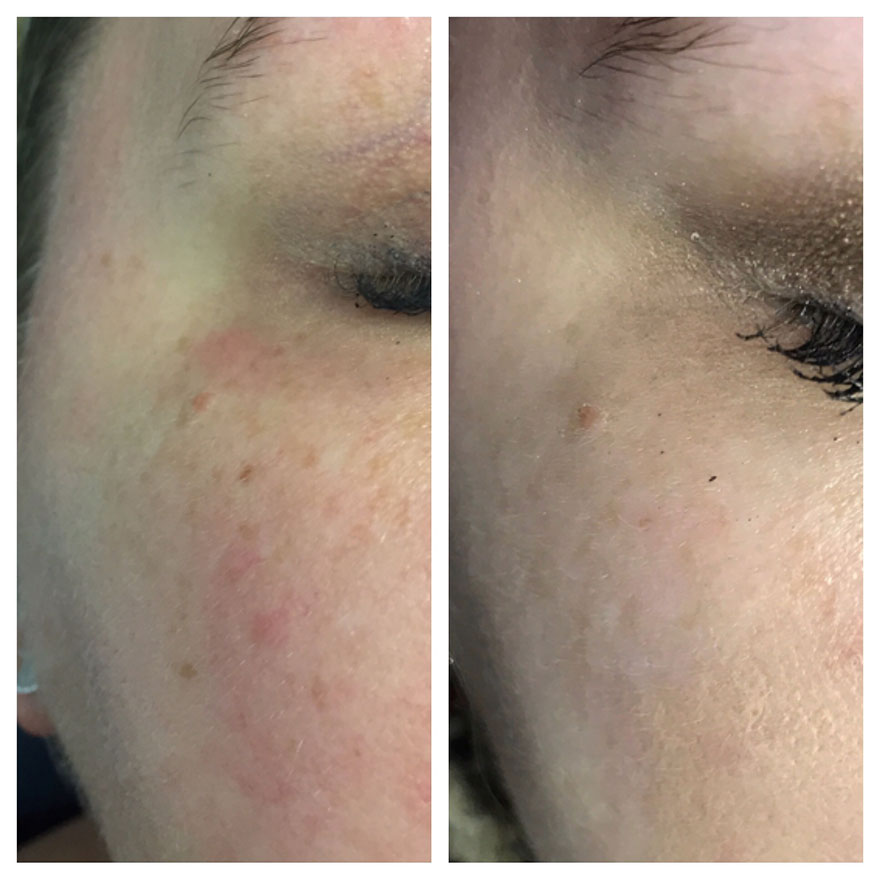 Laser acne treatment raleigh north carolina