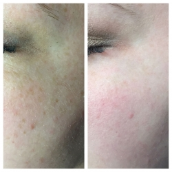 Patient 1 - Laser Pigmentation Filmstrip Before and Afters | Raleigh NC