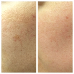 Patient 3 - Laser Pigmentation Filmstrip Before and Afters | Raleigh NC