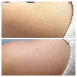 Patient 4 - Laser Pigmentation Filmstrip Before and Afters | Raleigh NC
