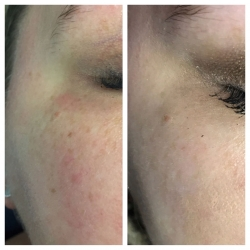 Patient 5 - Laser Pigmentation Filmstrip Before and Afters | Raleigh NC