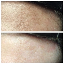 Patient 6 - Laser Pigmentation Filmstrip Before and Afters | Raleigh NC
