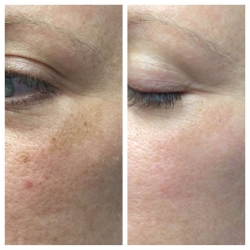 Patient 7 - Laser Pigmentation Filmstrip Before and Afters | Raleigh NC