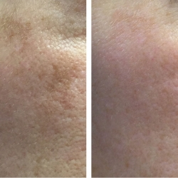 Patient 8 - Laser Pigmentation Filmstrip Before and Afters | Raleigh NC