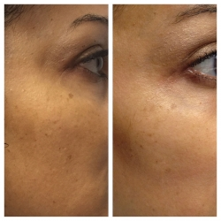 Patient 9 - Laser Pigmentation Filmstrip Before and Afters | Raleigh NC
