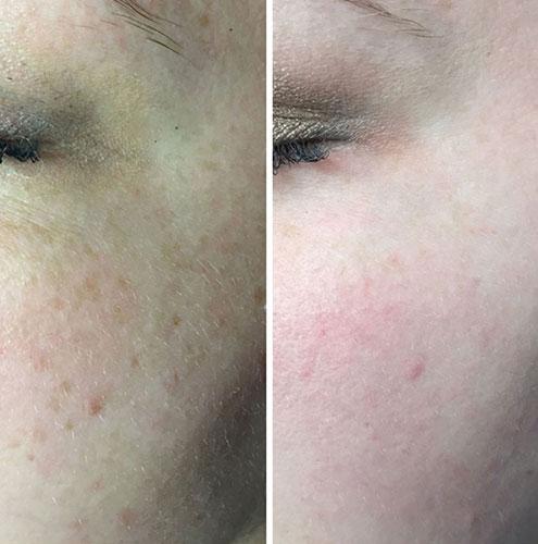 laser-pigmentation-01