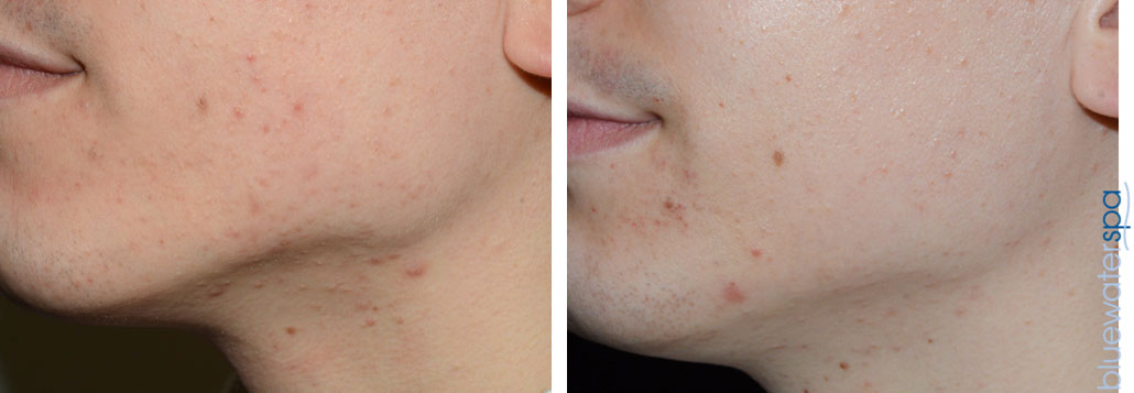 microneedling-5a