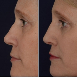 non-surgical-rhinoplasty-1